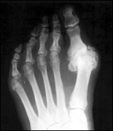 Bunion - X-Ray - Redondo Beach, CA Podiatrist